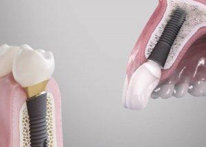 Implantology Image
